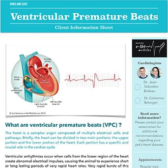 Ventricular Premature Beats